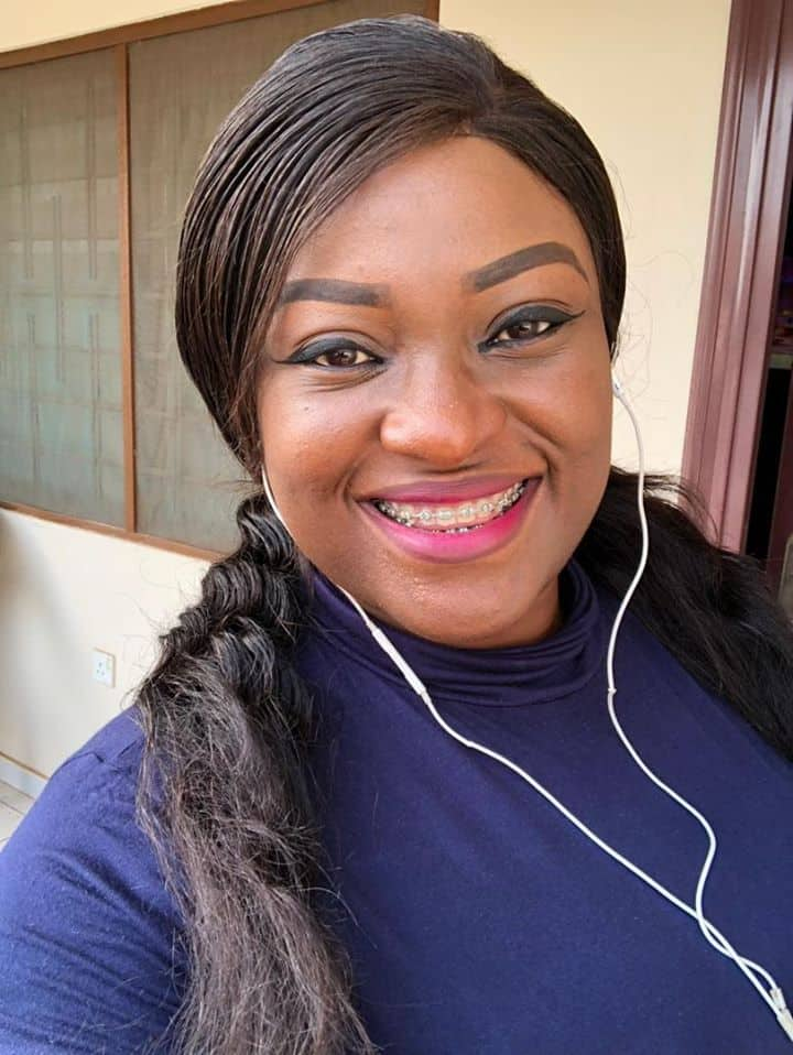 Pretty lady with hair loss syndrome opens up for 1st time as she marks 30th birthday (photo, videos)