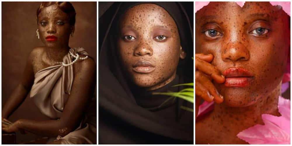Meet the beautiful 20-year-old Nigerian model with skin condition