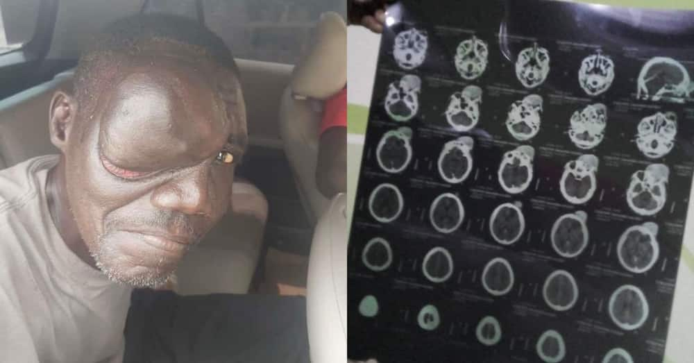 54-year-old homeless man develops tumour on his eye; needs money for surgery