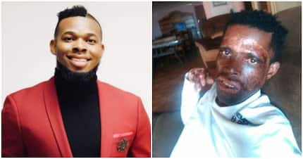 Entrepreneur helps man who lost his business after suffering 3rd degree burns (Photos)