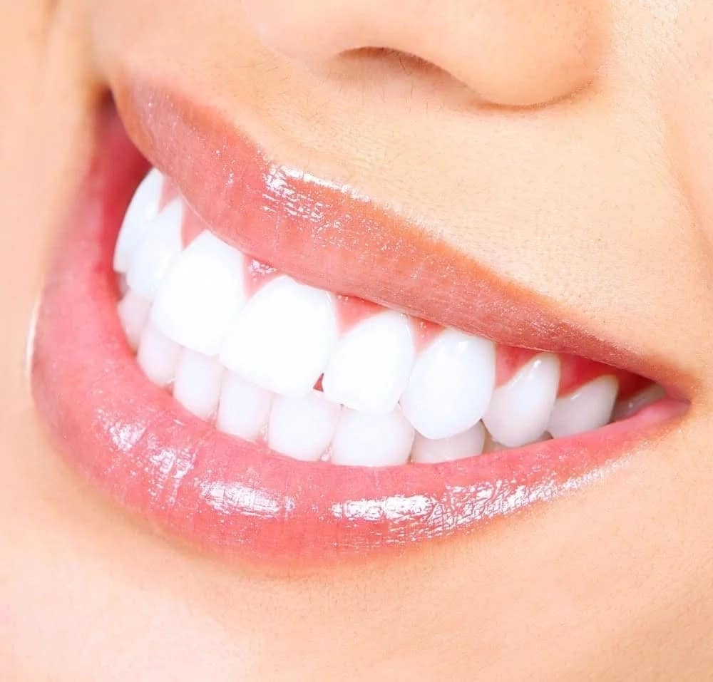 how to make your teeth white at home fast