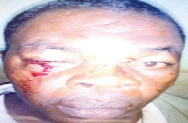 Member beats pastor over church accounts