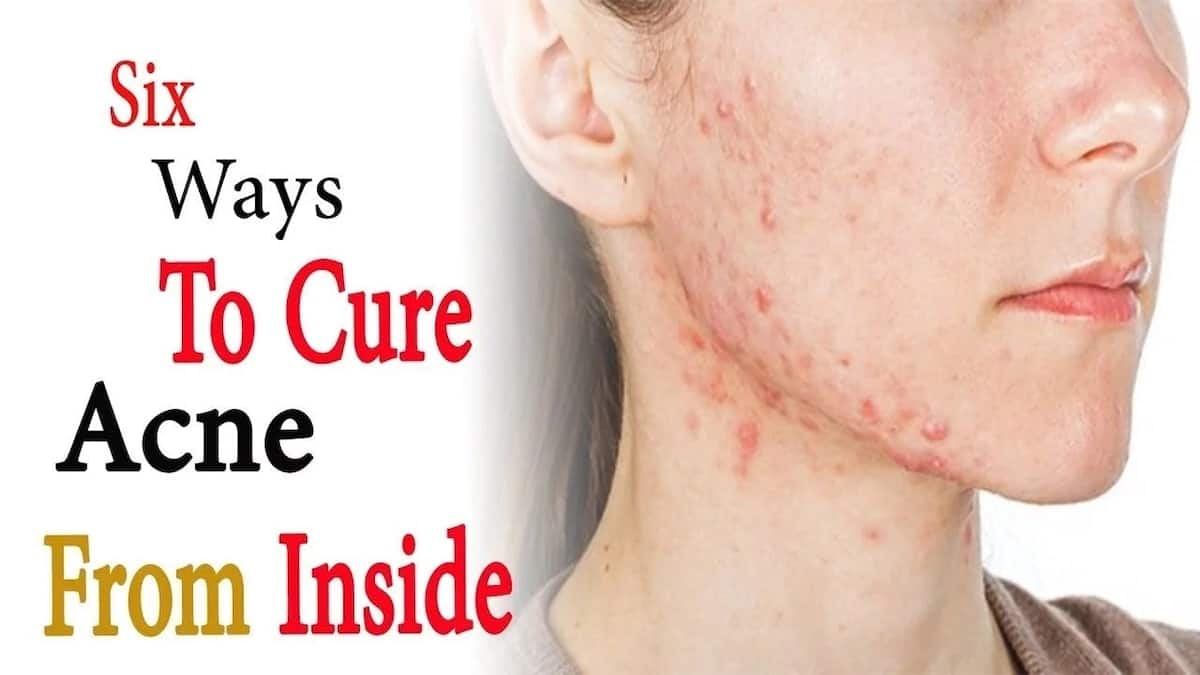 How to Cure Pimples Naturally at Home