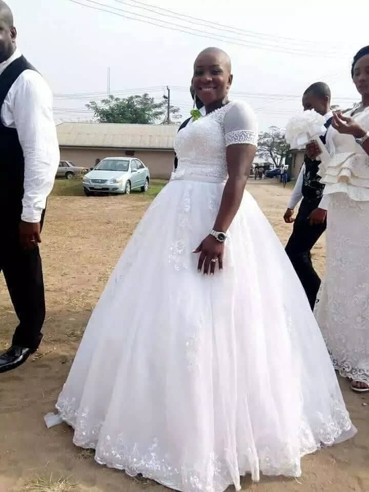 A bald bride in her white wedding gown