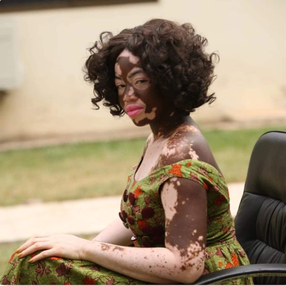 Ghanaian nurse and model 'fights' against discrimination with her skin condition