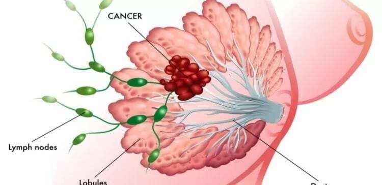 data on breast cancer in ghana incidence of breast cancer in ghana statistics of breast cancer in ghana