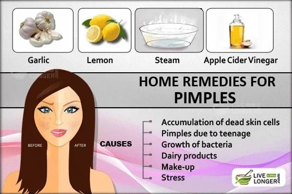 How to Get Rid of Pimples on the Face Fast