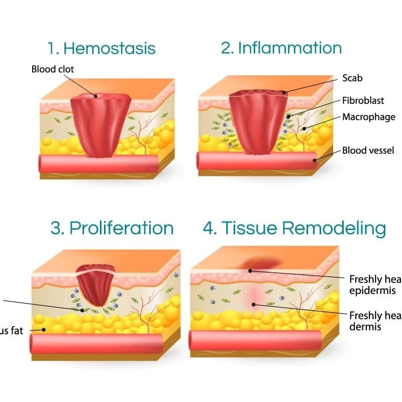 types of wound and healing process physiological and biochemical process of wound healing stages of wound healing process complications of wound healing process