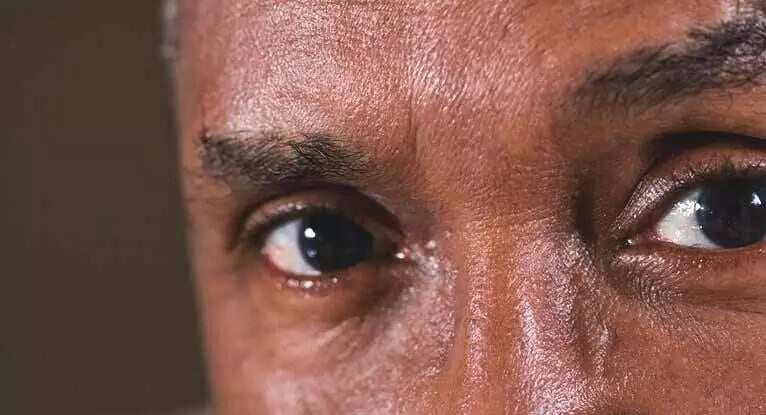 how to whiten your eyes how to make your eyeballs white pure white eyes