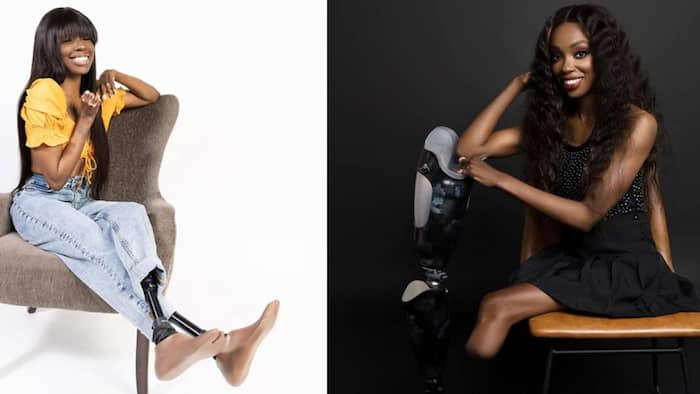 Pretty lady who lost her legs, fingers after falling sick becomes a model, beautiful photos pop up