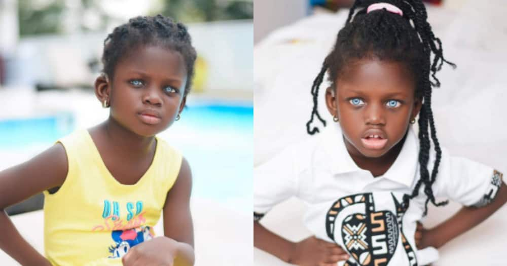 Rebecca Dumeh: Blue-eyed child modelling to raise funds and awareness for her condition
