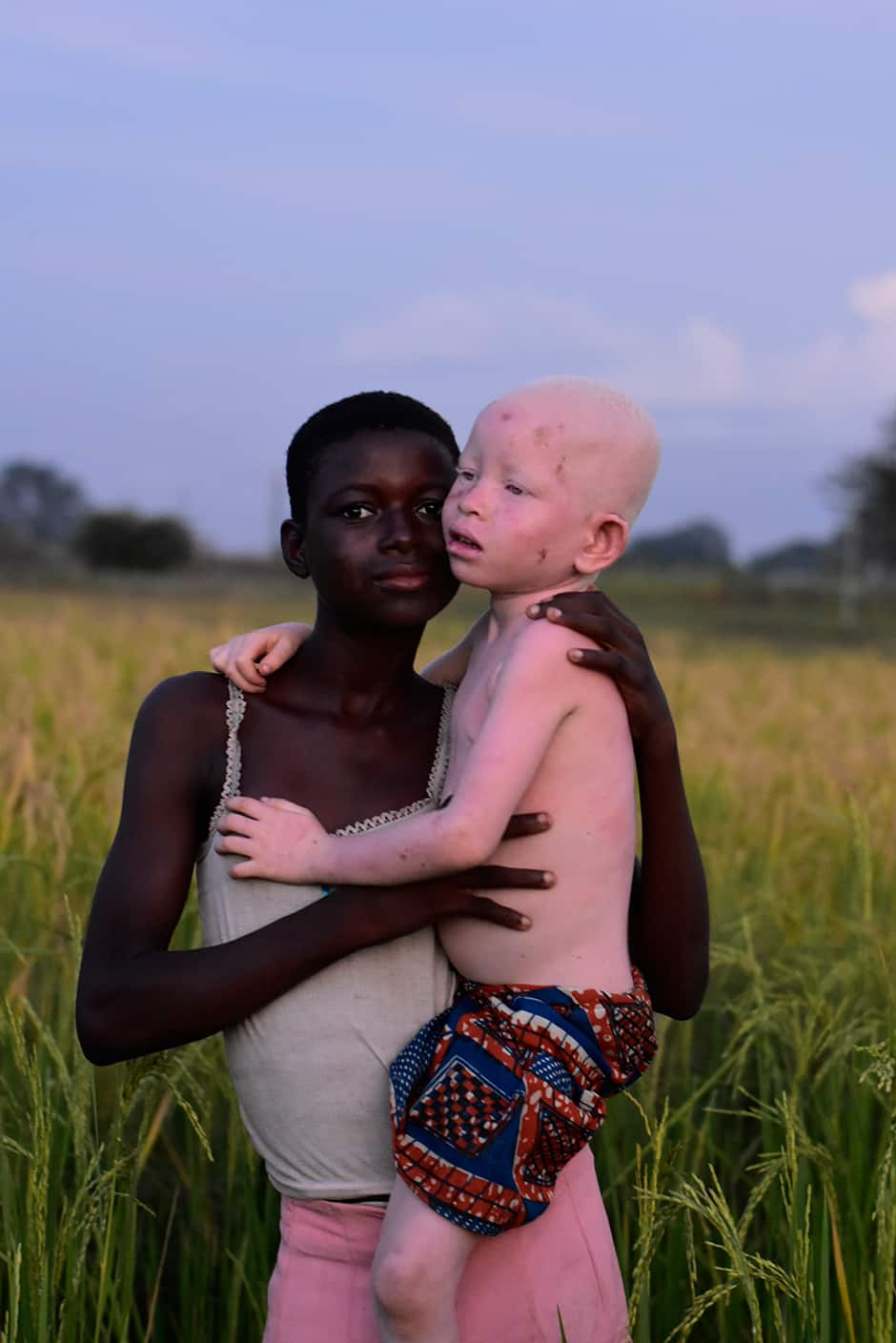 Photo of albino girl that won a photographer over GHC30,000 surfaces online
