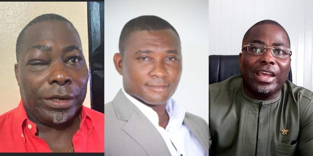 One-eyed photo drops of NPP's Charles Bissue after bloody fight with Tarkwa MP