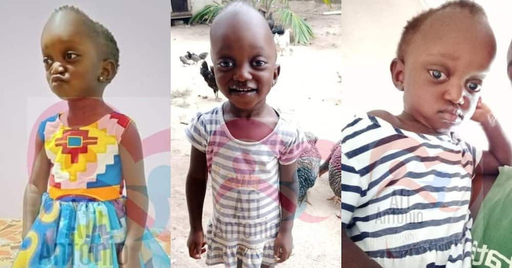 Adorable 2-year-old Ghanaian girl Adelaide needs GHc 27,000 or risks becoming mentally disabled