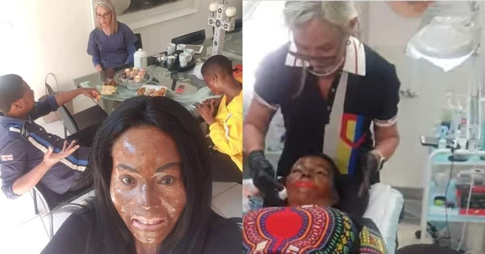 IA off: Strong burn victims grateful for generous makeup artist