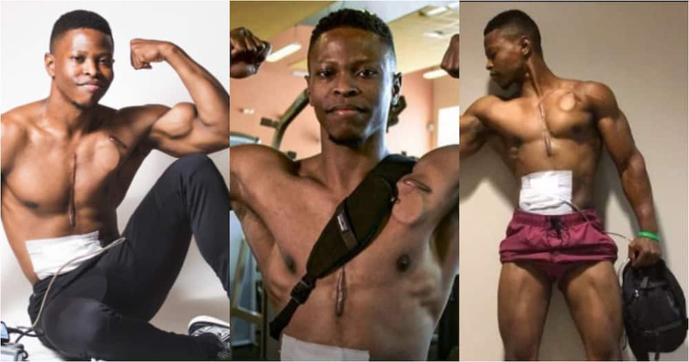 Andrew Jones: Meet the fitness model who walked with an artificial heart in his backpack for over 2 years