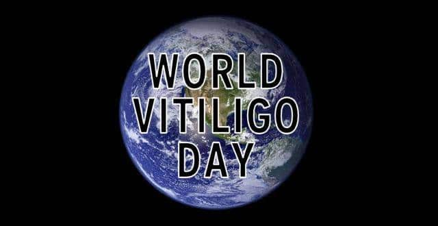 Everything you need to know about world Vitiligo day 2019