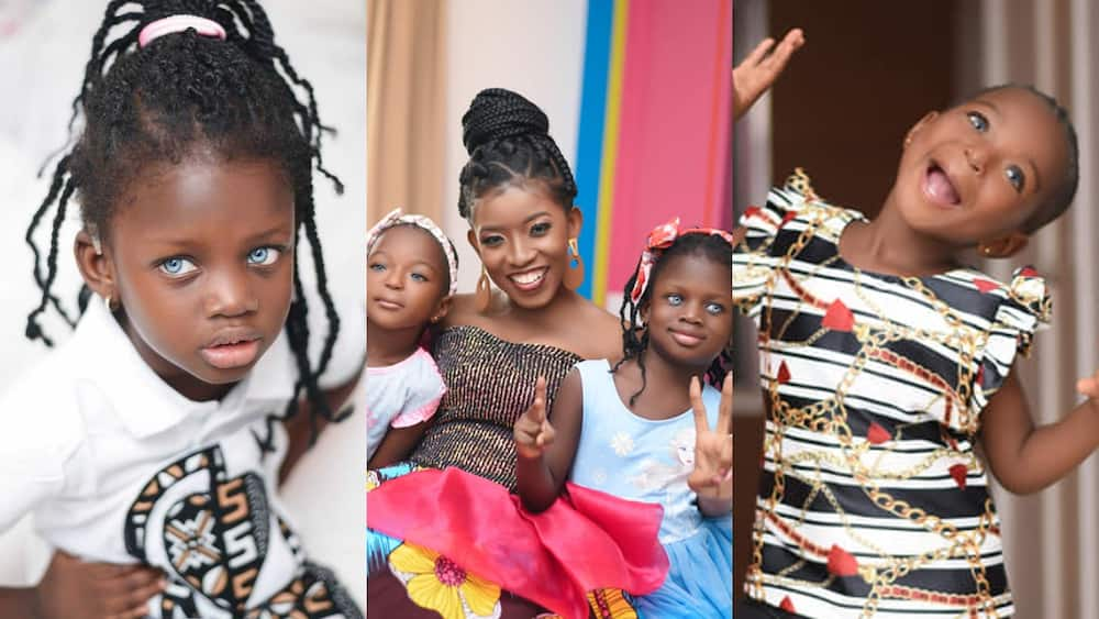 2 adorable Ghanaian kids in need of surgery wear bright smiles on b'day