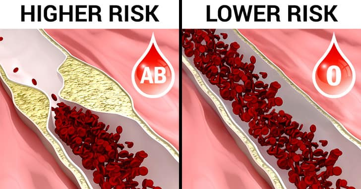 Best blood group compatibility for marriage
