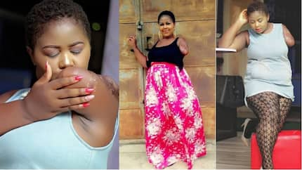 Meet beautiful Nigerian lady with amputated arm who is motivational speaker